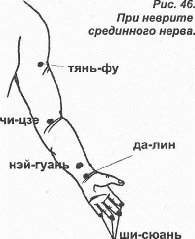 Упражнеия при неврите локтевого сустава неправильное положение суставов